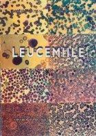 Leucemiile
